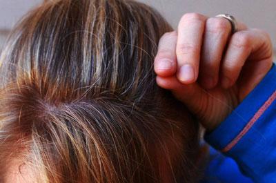 Почему появляются седые волосы в молодом возрасте
